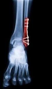 osteosynthese materiaal voet